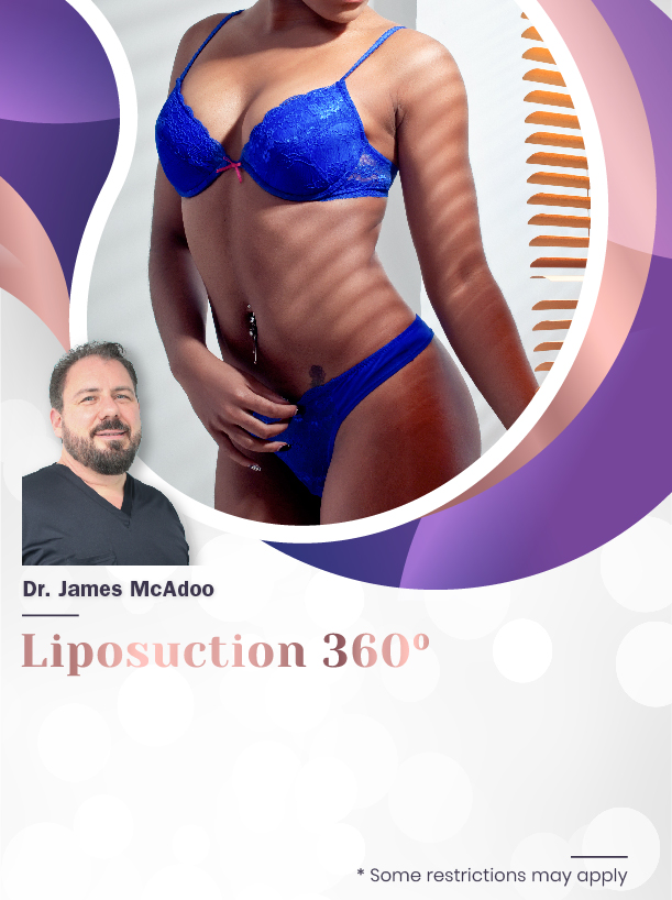 Liposuction 360º With Dr. McAdoo For $4,500 Special Image
